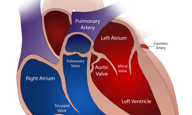 Trattamento dell'aterosclerosi: sintomi, cause e prevenzione